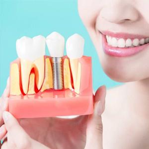 Cómo se colocan los implantes Dentales