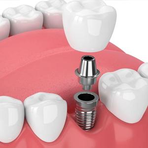 Implates Dentales